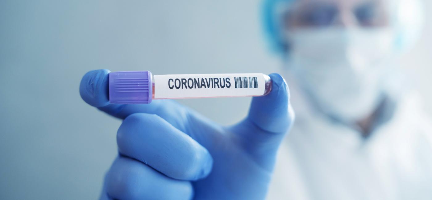 Bradesco Seguros contribui para o processamento de testes COVID-19 ...